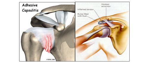 Apa Penyebab Paling Umum Nyeri Dengan Golfer's Elbow? serta beberapa otot yang