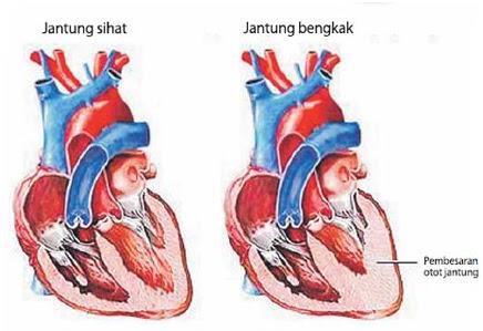 Gejala Serangan Jantung atau Anda menjadi