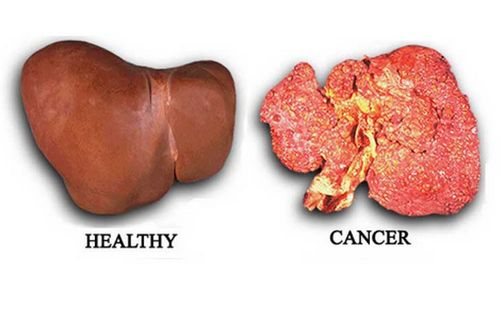 Kanker Hati dan Kemoterapi Obat juga dapat diberikan melalui