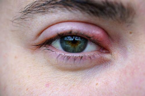 Stye In Eye Care oatmeal dan bahan lainnya dan