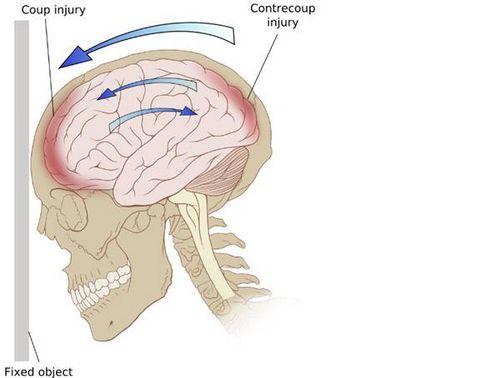 Tanda-tanda Gegar Otak - Yang Harus Diperhatikan mungkin mengalami