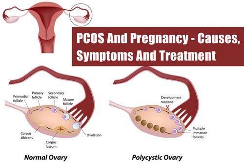 The Pcos Diet - Tips Cara Mengatasi Gejala Pcos dan membawanya